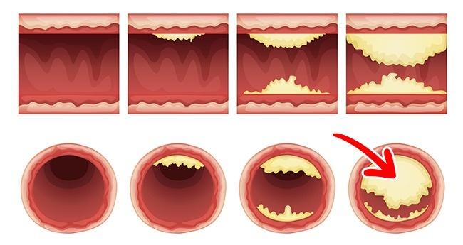 Ăn 2 quả trứng mỗi ngày và xem điều gì sẽ xảy ra với cơ thể bạn? - Ảnh 8.