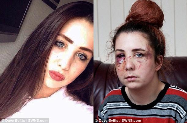 Cô gái tự kỷ bị tấn công dã man đến nỗi mẹ còn không nhận ra được con gái - ảnh 1