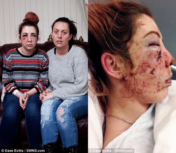 Cô gái tự kỷ bị tấn công dã man đến nỗi mẹ còn không nhận ra được con gái - ảnh 2