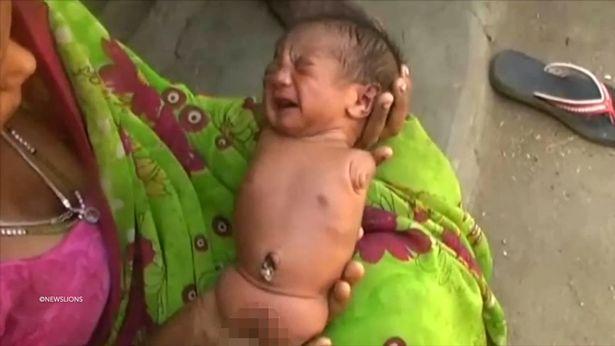 Bé gái Sọ Dừa phiên bản Ấn Độ sinh ra đã giống cục thịt không có tay chân - Ảnh 2.
