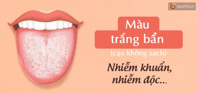 Lưỡi có 4 biểu hiện này, hãy đi kiểm tra sức khoẻ cấp tốc - Ảnh 1.