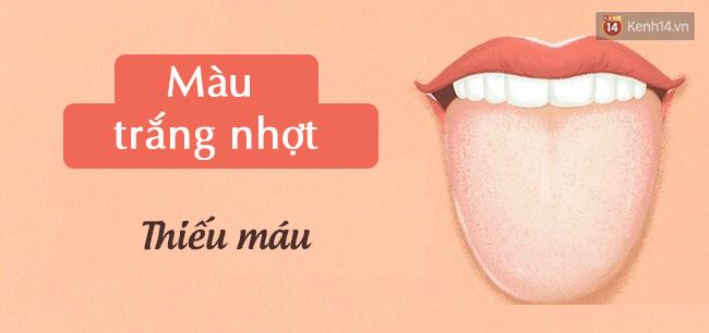 Lưỡi có 4 biểu hiện này, hãy đi kiểm tra sức khoẻ cấp tốc - Ảnh 2.