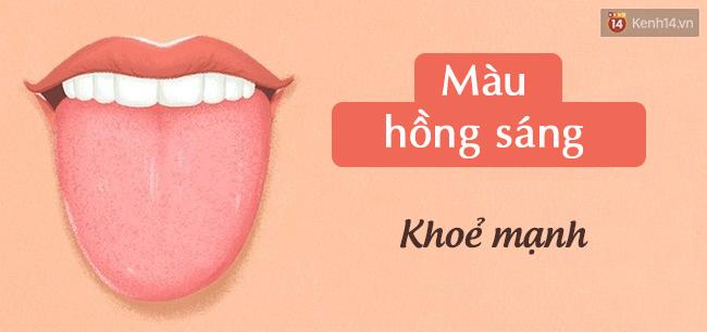 Lưỡi có 4 biểu hiện này, hãy đi kiểm tra sức khoẻ cấp tốc - Ảnh 5.