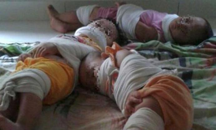 Hình Ảnh 3 Đứa Trẻ Bị Trói Chân Tay, Bịt Miệng Tại Trường Mầm Non