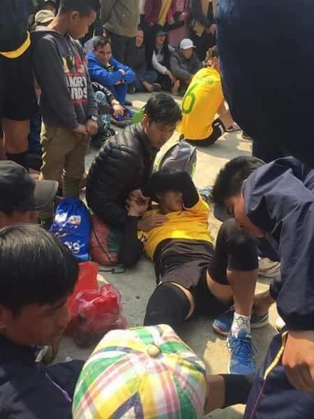 Thi đấu ở hội làng, một VĐV bóng chuyền bị gãy chân - Ảnh 2.
