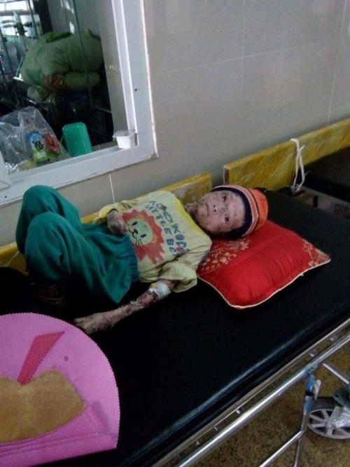 Lời cầu xin của người mẹ có con 17 tuổi chỉ nặng 9kg - ảnh 2