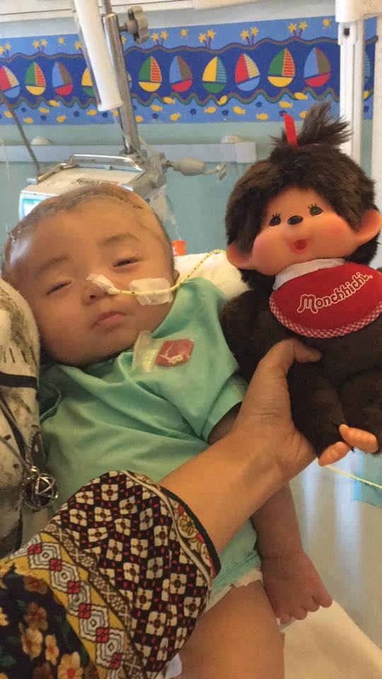 Hình ảnh và tình trạng hiện tại của bé bị não úng thủy Phạm Đức Lộc sau khi trở về từ Singapore - ảnh 2