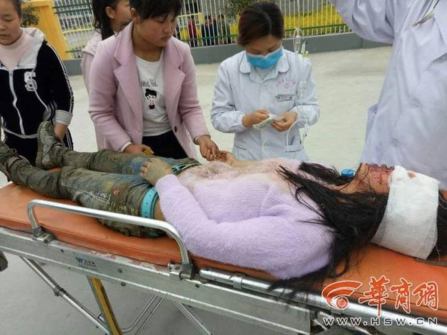 Nữ sinh trung học bị kẻ hiếp dâm tấn công đến mù mắt trên đường đi học - Ảnh 1.