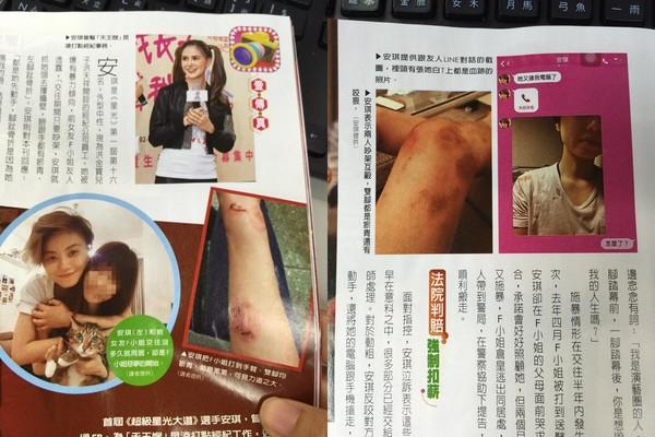 Nữ ca sĩ đồng tính xứ Đài bị bạn gái tố bạo hành, đánh đập dã man - Ảnh 2.