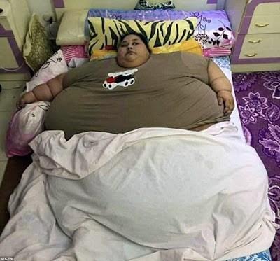 Giảm từ 500 kg xuống còn 250 kg sau phẫu thuật - Ảnh 1.