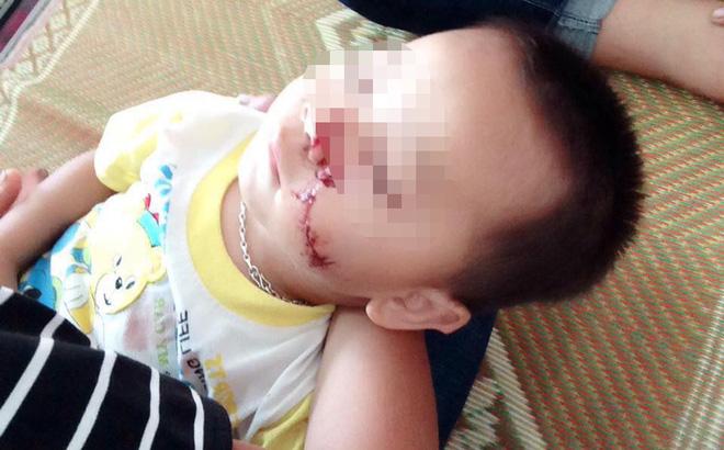 Sự thật câu chuyện bố chém con trai 2 tuổi rách mặt ở Tuyên Quang 1