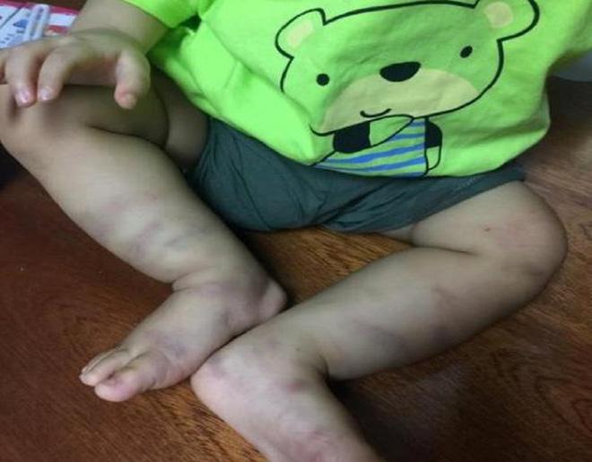 Đời sống: Mẹ của bé trai 1 tuổi bị bạo hành: Không muốn đưa con vào trại nếu phải ...