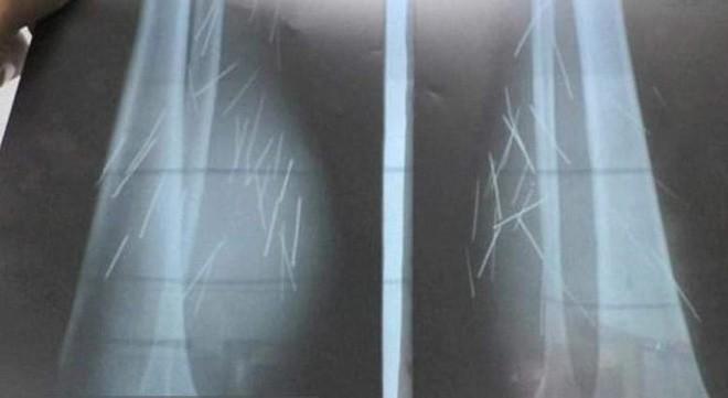 Chụp X-quang, bác sĩ phát hiện nhiều vật lạ trong chân cô gái và không thể tin nổi khi lấy ra - ảnh 2