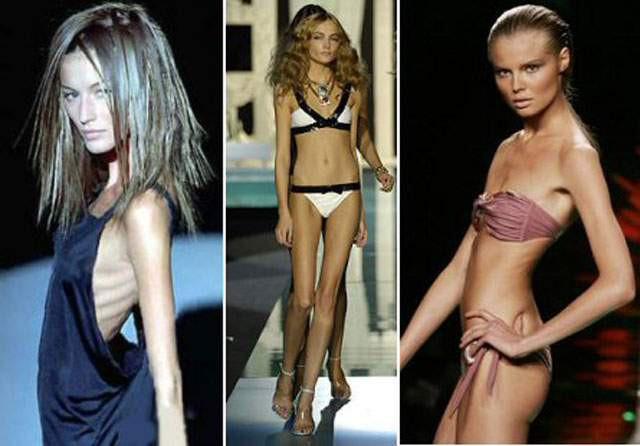 Mặt trái đáng sợ của ngành người mẫu: bị lạm dụng tình dục, những căn bệnh nghề nghiệp, ăn bông gòn ép cân và nhiều cái chết đau đớn - ảnh 2