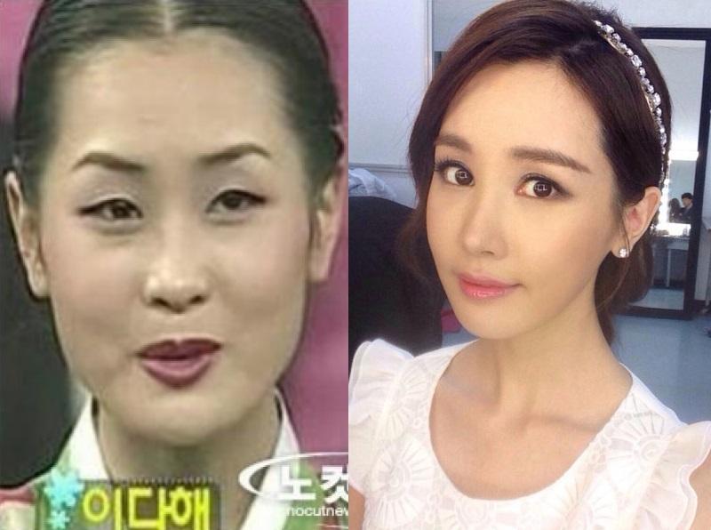 Sao Hàn: Sao nữ sút cân đến độ gầy tong teo: Mỹ nhân tự nhiên vẫn xuất sắc, người