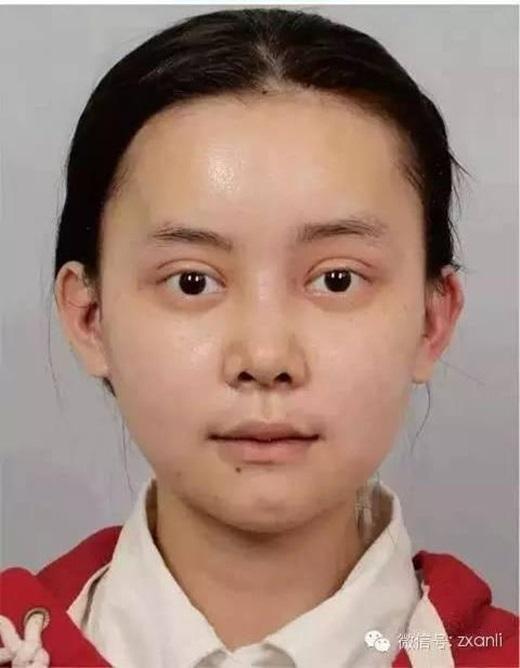 Cô gái trẻ chi hơn 3,2 tỷ đồng để phẫu thuật giống Angela Baby - ảnh 10