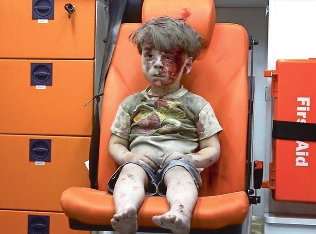 Dân mạng bật khóc trước clip cô bé Syria mặt rớm máu vẫn mỉm cười - Ảnh 3.