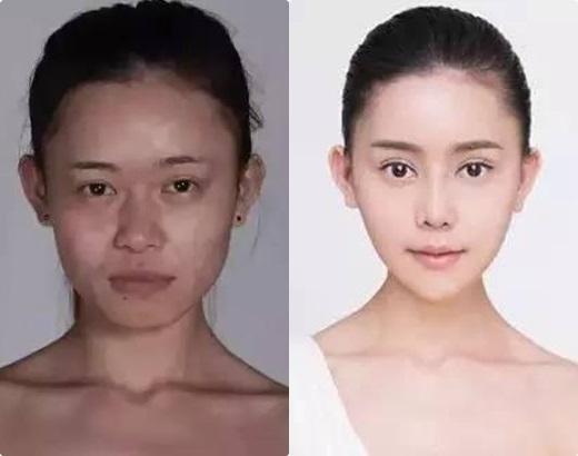 Cô gái trẻ chi hơn 3,2 tỷ đồng để phẫu thuật giống Angela Baby - Ảnh 6.