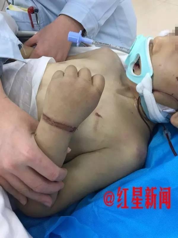 Đến thăm con, mẹ chết lặng khi phát hiện con trai bị vợ hai của chồng đánh đập thậm tệ - ảnh 3