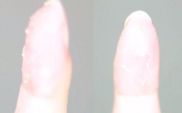 Que cậy mụn xưa rồi, giờ muốn xử lý mụn đầu đen phải dùng tăm nha khoa và nước xúc miệng - Ảnh 6.