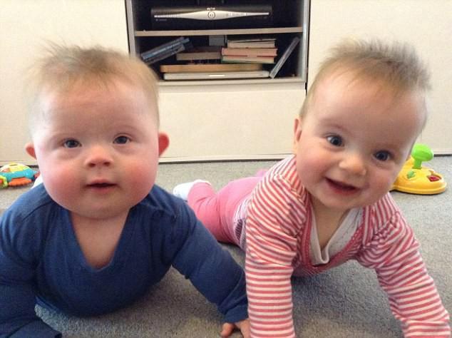Được khuyên bỏ thai vì con mắc bệnh Down, mẹ kiên quyết từ chối và hạnh phúc nhận kết quả vài tháng sau đó - ảnh 6