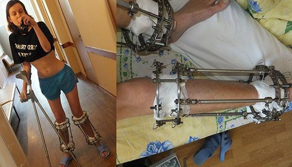 Lý do bạn cần cân nhắc thật kỹ trước khi quyết định thực hiện phẫu thuật kéo dài chân - ảnh 2