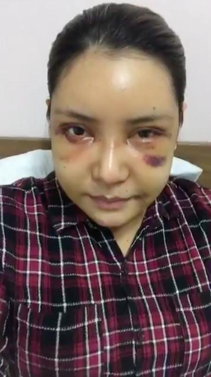 Hậu đập mặt xây lại, học trò Đàm Vĩnh Hưng vui vẻ livestream, lộ gương mặt tụ máu bầm dập - Ảnh 2.