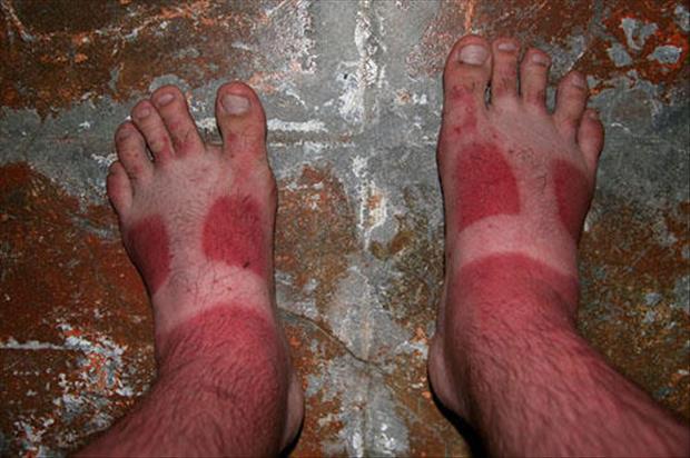 14 tai nạn cháy nắng khiến làn da trông như thịt nướng - Ảnh 21.