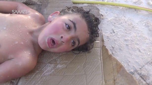 Nạn nhân của chất độc hóa học trong vụ tấn công thảm họa Syria đã phải chịu đựng những gì? 1