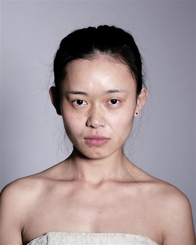Cô gái trẻ chi hơn 3,2 tỷ đồng để phẫu thuật giống Angela Baby - ảnh 2