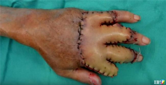 Bác sĩ khâu bàn tay bị bỏng nặng của cụ ông 87 tuổi vào bụng, chỉ 3 tuần sau, kỳ tích đã xảy ra - Ảnh 3.