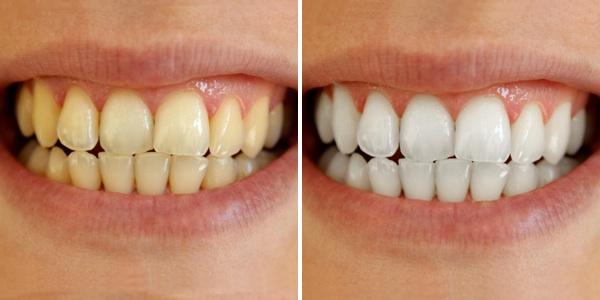 Răng trắng, cao răng bong ra từng mảng chỉ với một miếng bánh mì cháy - Ảnh 1.