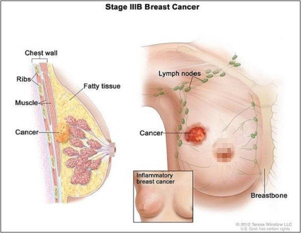 Bức ảnh này có thể giúp bạn nhận biết nhanh và rõ hơn bệnh ung thư phổ biến nhất ở XX - Ảnh 2.