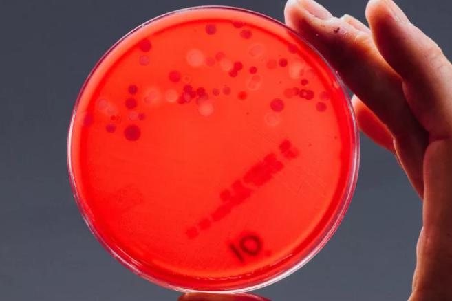 Dựng tóc gáy với những vi khuẩn có trên điện thoại của bạn ngay lúc này - Ảnh 5.