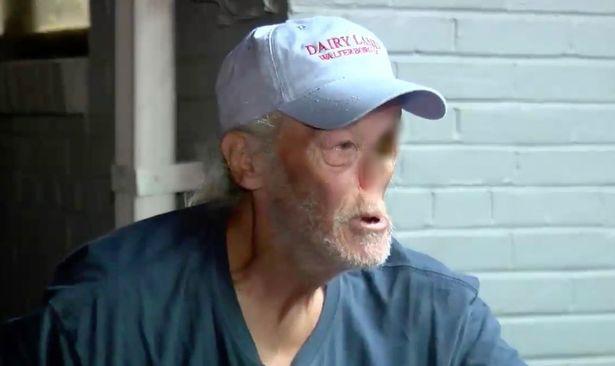 Với khuôn mặt biến dạng vì ung thư, người đàn ông bị đuổi khỏi cửa hàng vì bà chủ sợ dọa khách bỏ chạy - ảnh 1