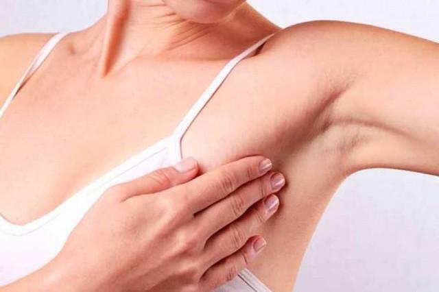 Người mẫu nổi tiếng qua đời ở tuổi 34 vì ung thư vú, chuyên gia cảnh báo bệnh ngày càng trẻ hóa - ảnh 2
