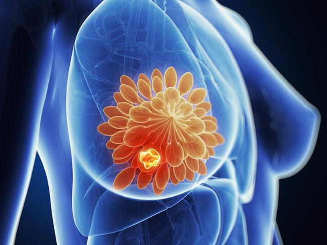 Người mẫu nổi tiếng qua đời ở tuổi 34 vì ung thư vú, chuyên gia cảnh báo bệnh ngày càng trẻ hóa - ảnh 3