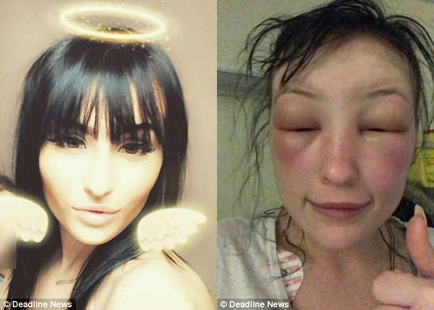 """Tự mình nhuộm tóc ở nhà, người phụ nữ """"tá hoả phát hiện gương mặt biến dạng, thậm chí không thể mở mắt - ảnh 4"""