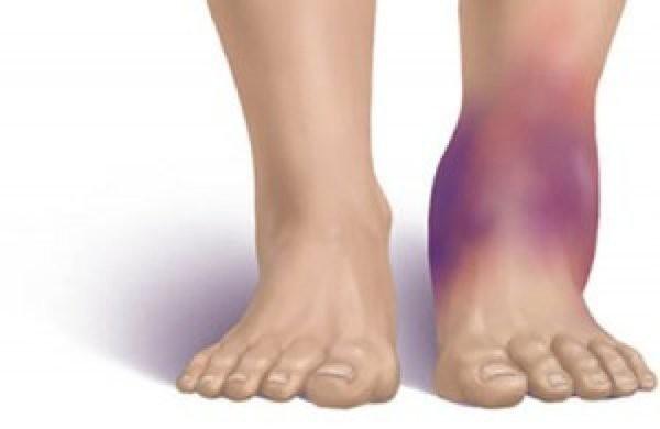 Bong gân – Làm sao để sơ cứu đúng cách, tránh ảnh hưởng chức năng xương khớp? - ảnh 2