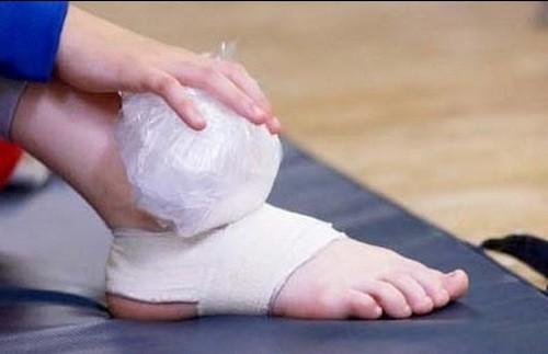 Bong gân – Làm sao để sơ cứu đúng cách, tránh ảnh hưởng chức năng xương khớp? - ảnh 3