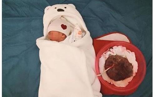 Vụ Sức khỏe bà mẹ - trẻ em khuyến cáo: Sinh con thuận tự nhiên là phương pháp phản khoa học