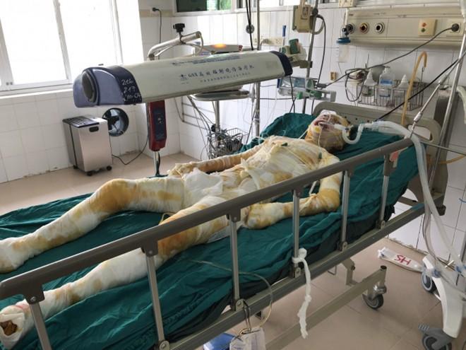 Cô gái bị người yêu tẩm xăng thiêu sống ở Vĩnh Phúc đã qua đời - Ảnh 1.