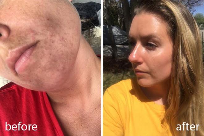 Rửa mặt với nước cất trong 1 tuần và làn da của cô nàng này đã thay đổi đáng kinh ngạc - Ảnh 1.