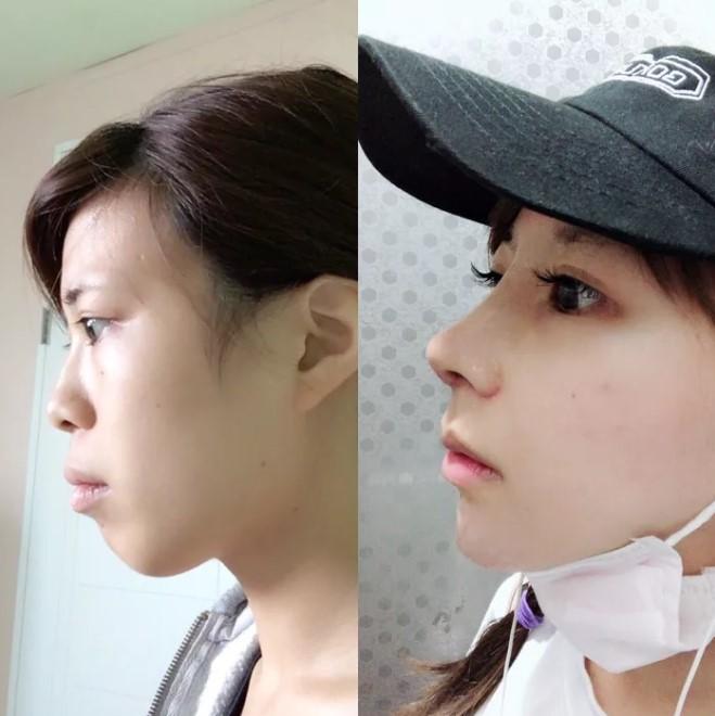 Khoe ảnh PTTM thành công, thiếu nữ Nhật được dân tình nhận xét: Trông như vừa đầu thai kiếp khác! - ảnh 5