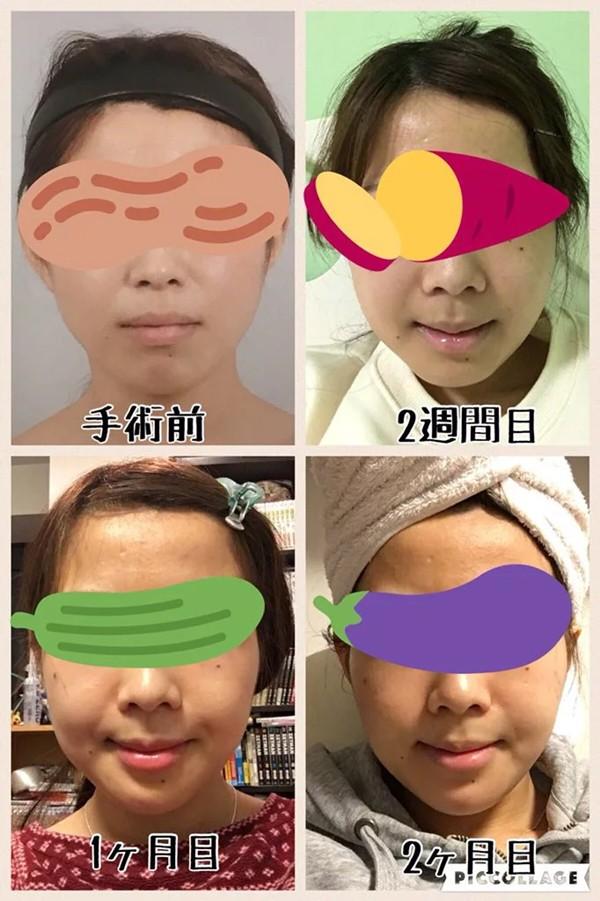 Khoe ảnh PTTM thành công, thiếu nữ Nhật được dân tình nhận xét: Trông như vừa đầu thai kiếp khác! - ảnh 3