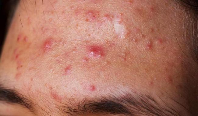 5 loại mụn trên da dù có ngứa thế nào cũng tuyệt đối không được nặn - Ảnh 3.