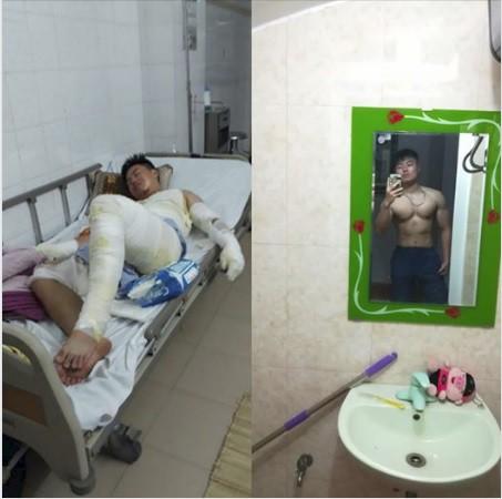 Hành trình phục hồi từ cơ thể bị bỏng nặng 40% đến body cơ bắp khỏe mạnh của chàng trai Thái Nguyên - ảnh 1