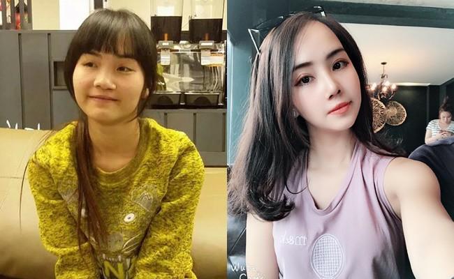 Từng bị bạn bè cầm chổi ném vì xấu xí, cô gái Hà Nội hở hàm ếch lột xác, đổi đời sau phẫu thuật thẩm mỹ - ảnh 1