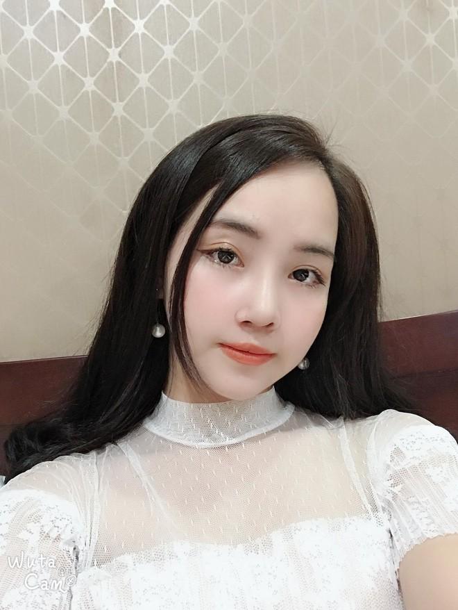 Từng bị bạn bè cầm chổi ném vì xấu xí, cô gái Hà Nội hở hàm ếch lột xác, đổi đời sau phẫu thuật thẩm mỹ - ảnh 5