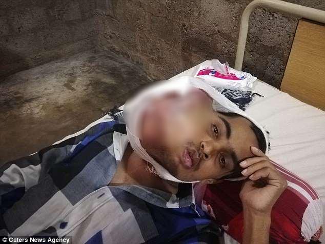 Pakistan: Chàng trai 21 tuổi mắc bệnh ung thư miệng sau khi đi nhổ răng khôn giá rẻ ở phòng khám kém uy tín - ảnh 1